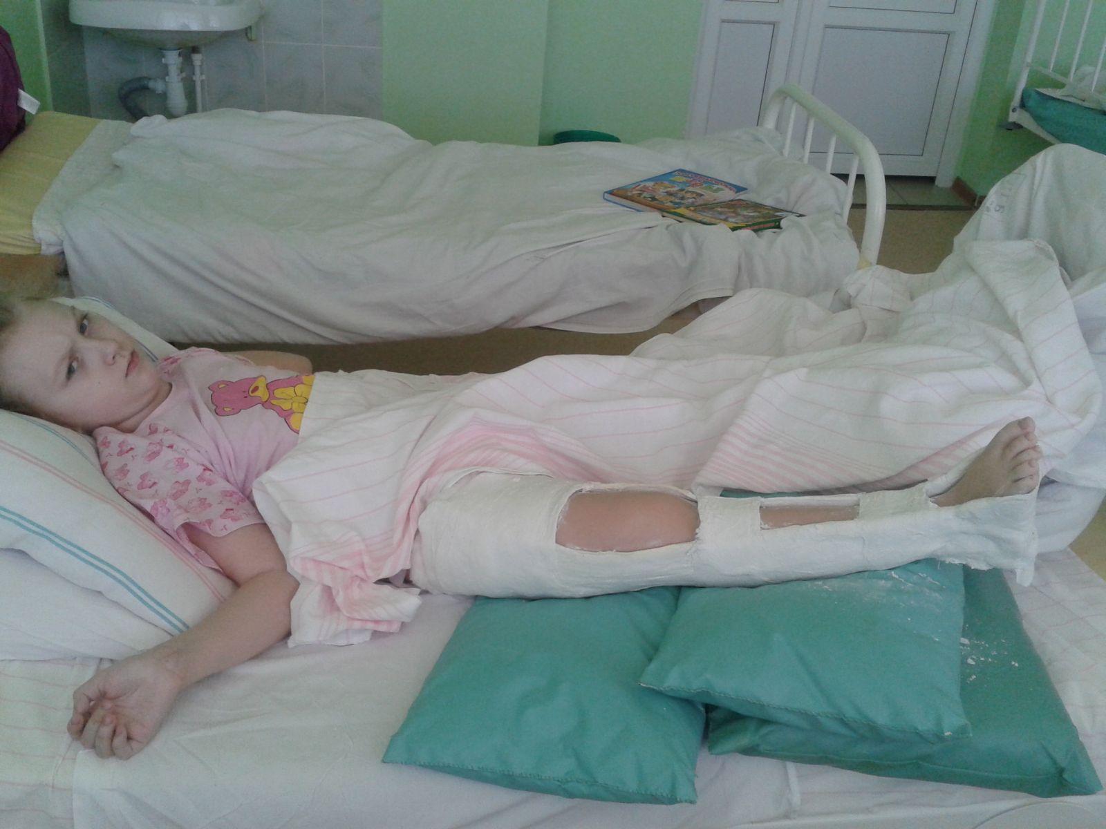 Фото дети ребенка перелом ноги