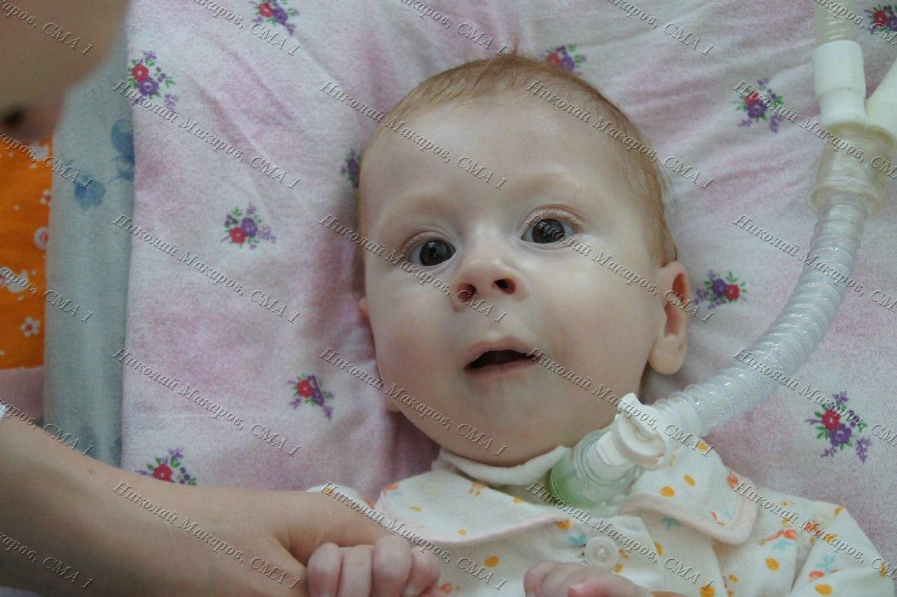ребенку 9 месяцев похудел